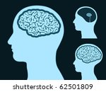 Male head silhouette with small and big brain - stock vector