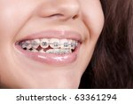 Dental braces - stock photo