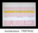 a real Fetal Heart and Uterine Contraction strip physicians and nurses use to monitor labor before birth. - stock photo